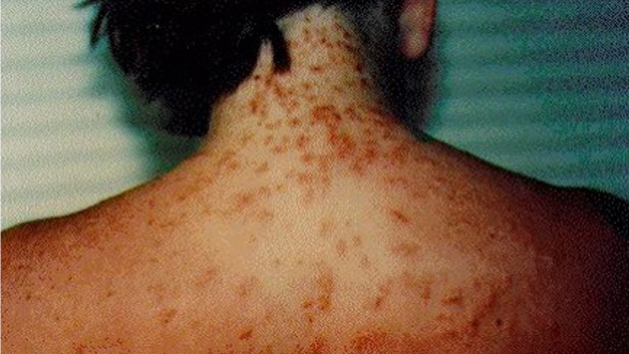 Sea lice outbreaks on rise in florida beaches for Piojos piscina