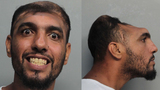 'Half-headed' Florida man arrested on arson, attempted murder charges
