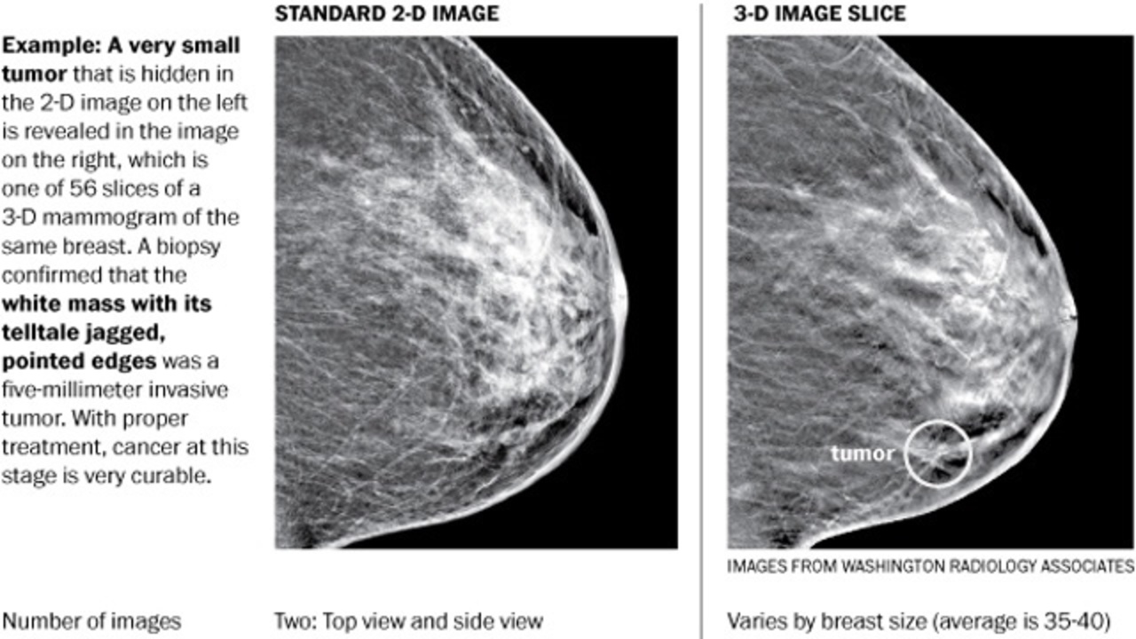 3-D mammography substantially improves screening for breast...