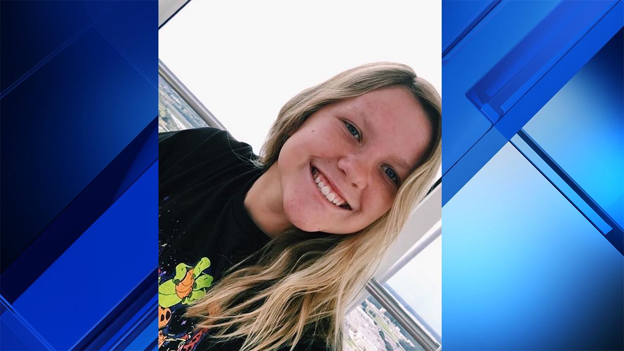 Teenage girl severely burned in 2017 dies of injuries