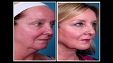 Doctors use helium to help tighten skin in new alternative to facelifts