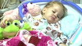 Health officials confirm 62 reports of illness similar to polio in 22 states