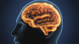 Neurology at University of Miami Health System