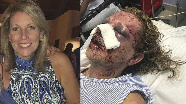 Woman tells survival story after Domincan Republic vacation attack