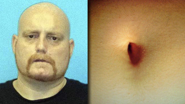 Florida man stashes meth 'deep' in belly button, police say